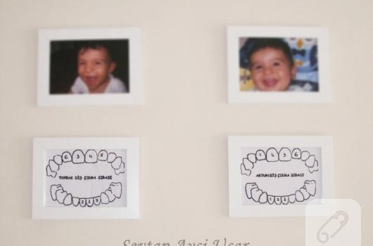 diş çerçevesi